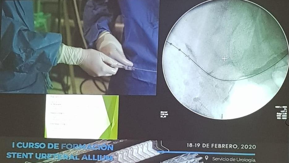 stent ureteral allium