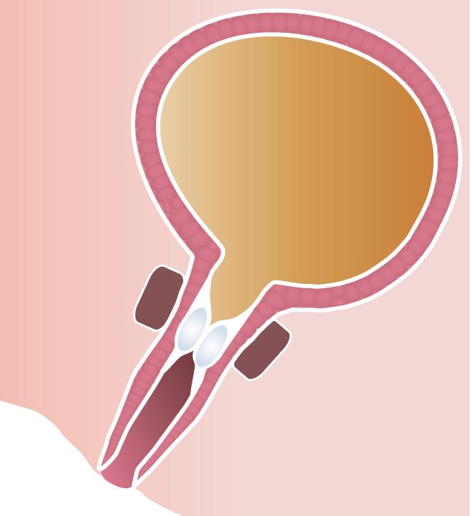 Urolastic Cardiolink