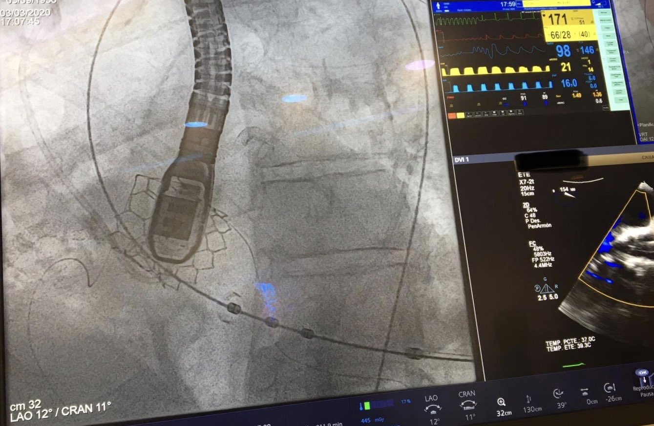 TAVR, transcatheter heart valve, Myval